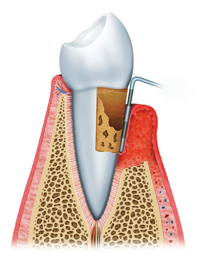 Stages of Gum Disease Montgomery, AL