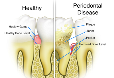 Gum Disease and Tooth and Bone Loss Montgomery, AL